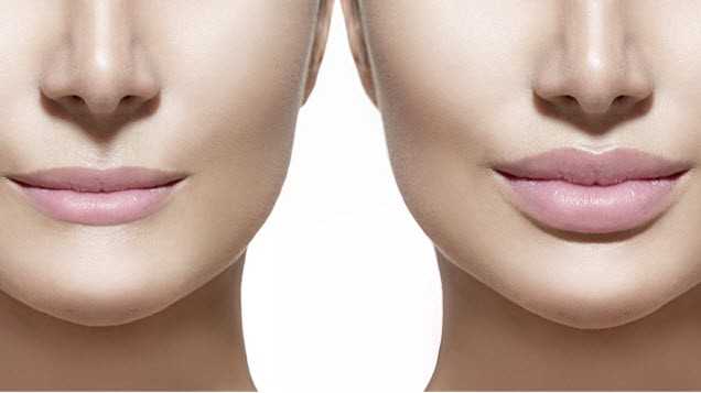 Dermal Fillers Townsville